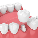 Dental Video - crowns