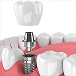 Dental Video - Dental Implants