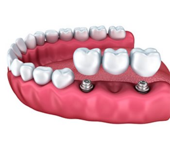 cheap dental implants from Dentist in Greensboro