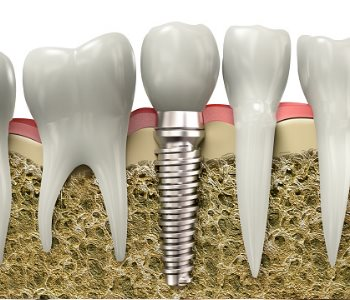 Cost of dental implants explained by Dentist in Greensboro area