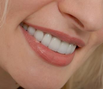Dental Veneers from Dentist in Greensboro area