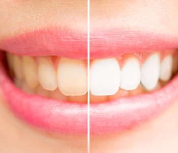 Professional teeth whitening treatments from Dentist in Greensboro area