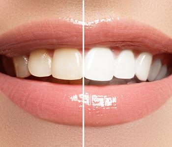 Teeth Whitening Procedure Greensboro
