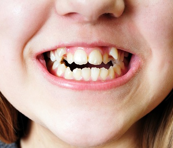Kids Toothache Treatment