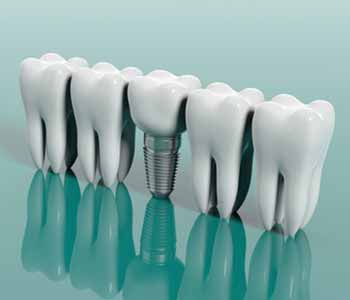 Dr. Steven Hatcher recommends dental implants as a lasting tooth replacement solution.