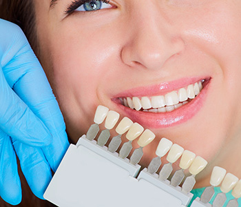 Affordable Dental Veneers in Greensboro area