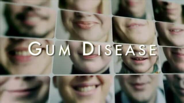Gum Disease - Triad Dentistry, Greensboro, NC