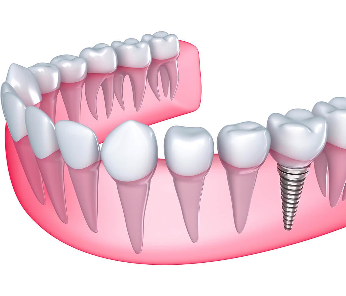 Cosmetic Dental Implants in Winston-salem NC Area