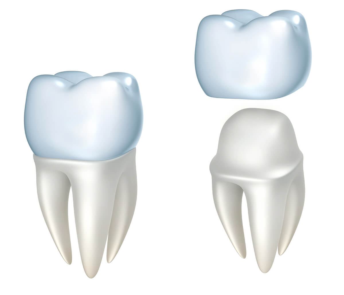 Dentist for Crowns in Greensboro NC Area